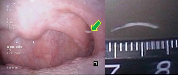 刺さっ が た 骨 に 喉